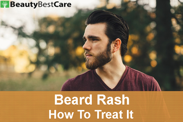 beard rash , what is it and how to treat it